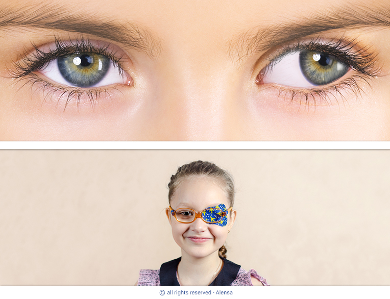 Example of amblyopia (lazy eye) with corrective patch