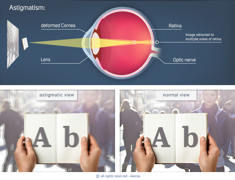 Explanation of astigmatism and comparison of astigmatic view with normal view