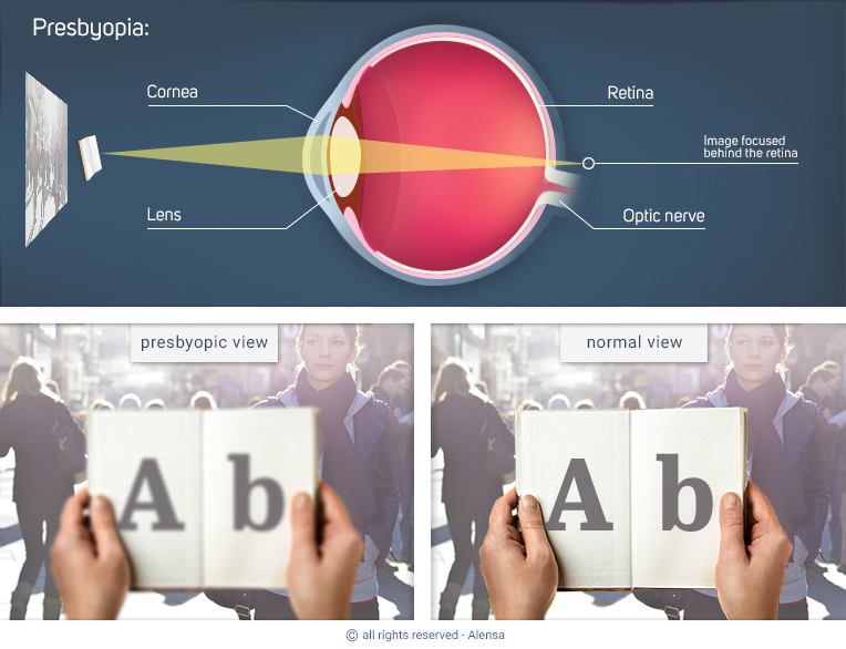Explanation of presbyopia and comparison of presbyopic view with normal view